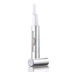 Timexpert White Spot Diminish Concentrate Pigmentines dėmes šalinantis koncentratas, 15ml